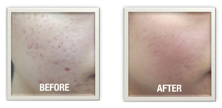 Dermapen Skin Needling Before and After-Simply Beautiful Skincare-Melbourne-0403 014 647