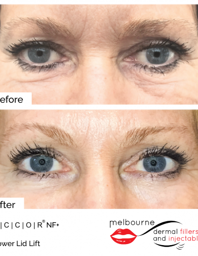 mdfai-lower-eyelid
