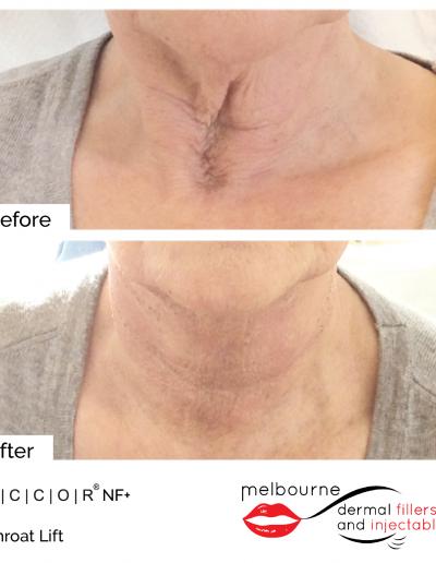mdfai-throat-lift