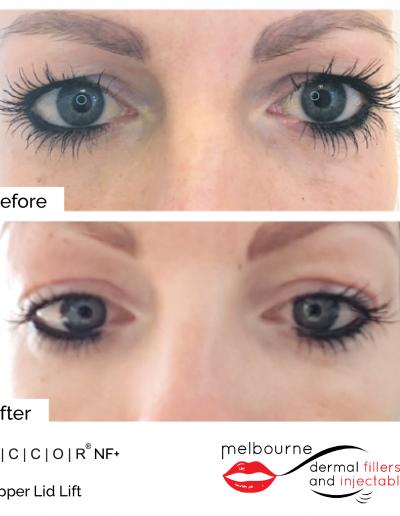 mdfai-upper-eyelid-2