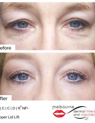 mdfai-upper-eyelid
